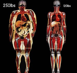 fat-slim-skeleton